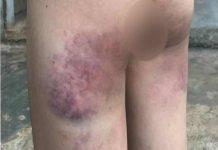 Hội đồng nhà trường xem xét kỷ luật cô giáo đánh bầm mông học sinh lớp 4